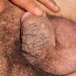 6- Kadın da ve erkekte HPV nin yapacağı hastalık nedir?