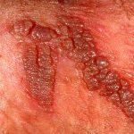 5- Virus'un bir kuluçka süresi var mı?