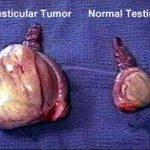 10- Testiste Tümör tespit edildiginde yaklaşım nasıl olmaldır?
