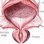3- Prostat büyümesinin sebebi nedir?